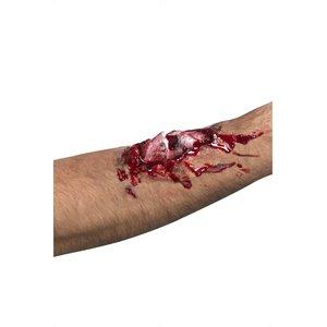 Wunde mit Knochen - Broken Bone Scar