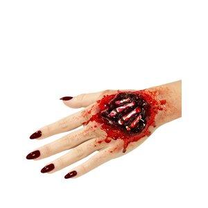 Wunde Handknochen